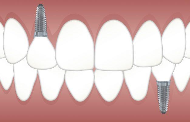 inlocuirea dintilor lipsa