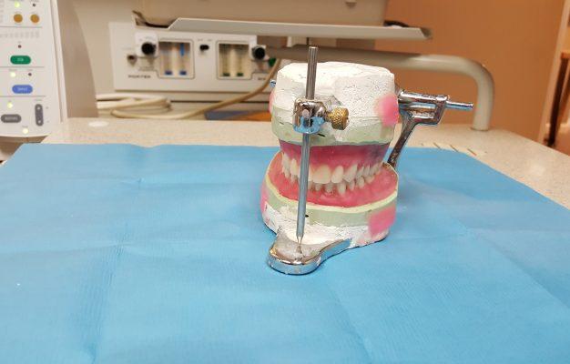 cauze chist dentar